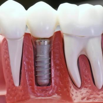 Зубные импланты швейцария